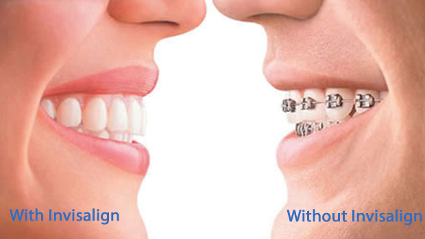 Invisalign in Green Valley South