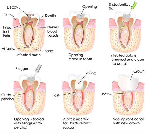 Green Valley South Root Canal