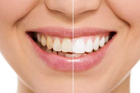 Cosmetic Dentistry near Las Vegas