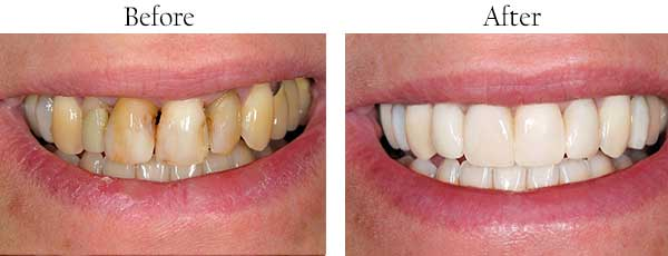 Green Valley South Before and After Teeth Whitening