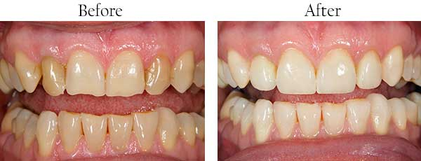 Paradise Before and After Invisalign
