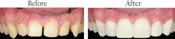 Green Valley South dental images